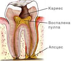 Шематски приказ на  заб со кариес